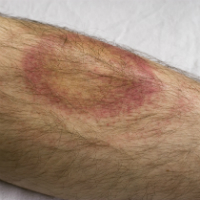 Lyme disease rash erythema migrans