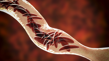 Sickle cell disease red blood cells in a blood vessel