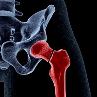 Osteoporotic hip fracture - 200 x 200