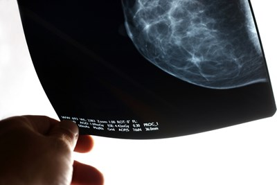 NICE recommends controlled use of targeted breast cancer radiotherapy treatment alongside further research