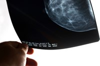 Breast cancer scan Intrabeam