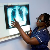 Updated tuberculosis guidelines will help target most vulnerable