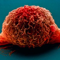 First bladder cancer guideline to reduce variations in care